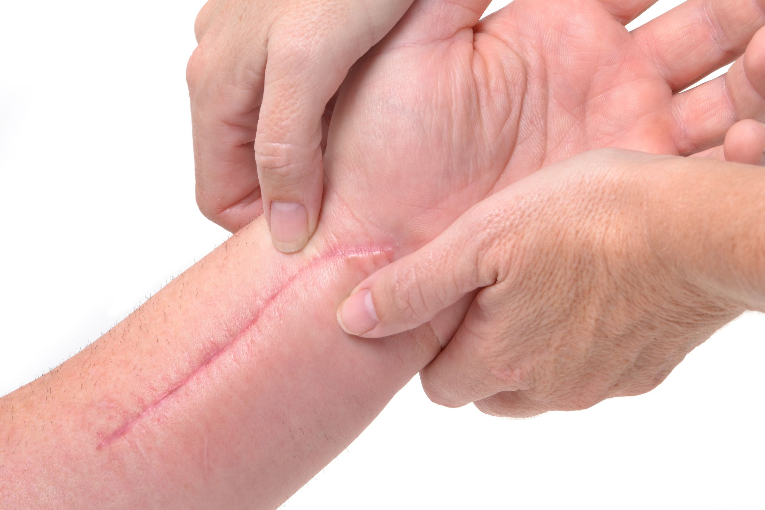 3a2e5f4c6 Dermatix | Hypertrophic scars: What they are, how they're caused and ...